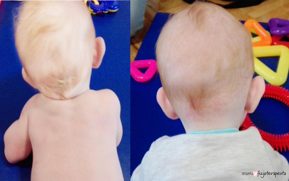 kręcz szyi u niemowlaka
